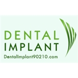 Dental Implant 90210